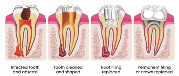 Keith Dental Root Canal Treatment